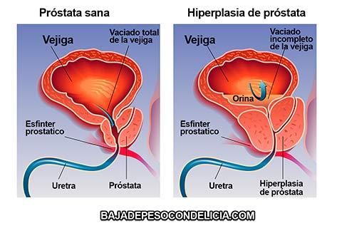 Los síntomas y signos de las infecciones del tracto urinario varían dependiendo del sexo, edad y el área del tracto urinario que está infectada; Algunos síntomas únicos se desarrollan dependiendo del agente infeccioso.