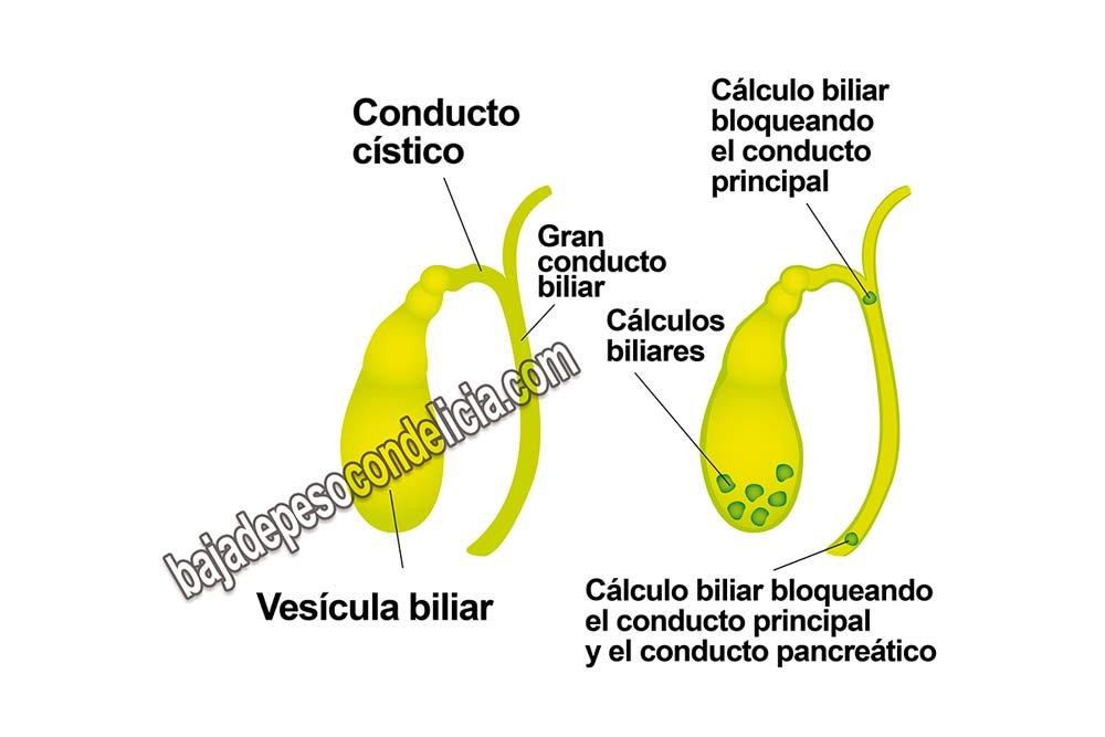¿Podemos considerar los cálculos biliares un mal menor?