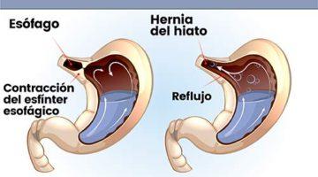 Tratamiento de las hernias hiatales