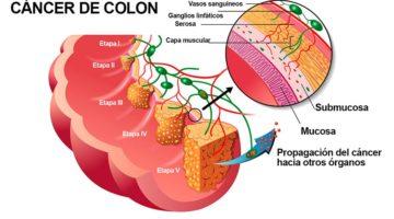 Según el tipo los pólipos de colon pueden o no aumentar el riesgo de cáncer