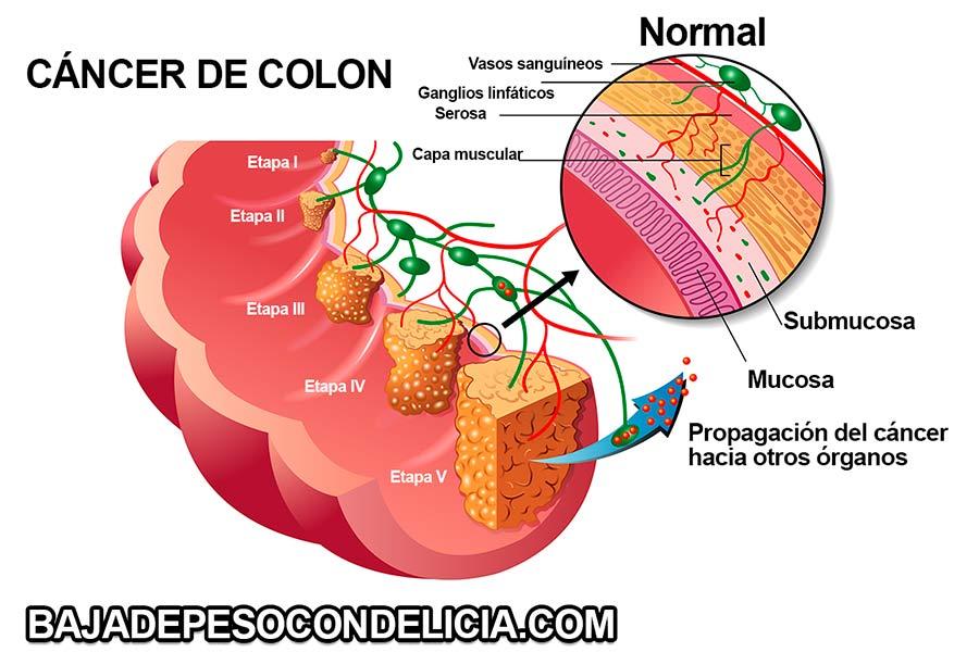 Pólipos de colon adenomatosos